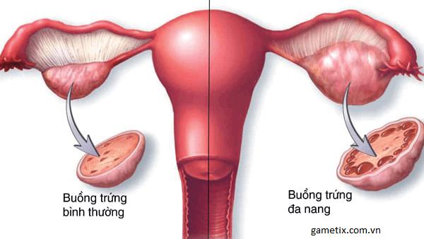 Hỏi và giải đáp, tư vấn cho bệnh nhân buồng trứng đa nang